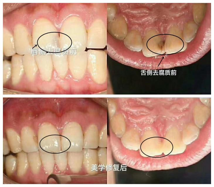 别再问嵌体补牙能用几年,这有全瓷嵌体使用1年后的效果反馈