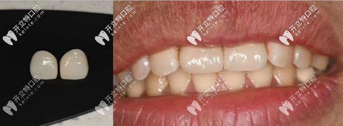 牙齿瓷贴面做了会后悔?那是你没看到我的贴面效果图哟