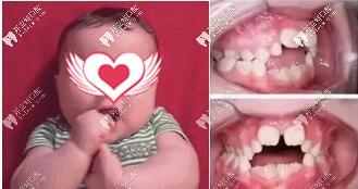 导致儿童牙齿畸形的原因之一吮指