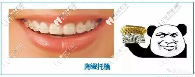 陶瓷半隐形牙套