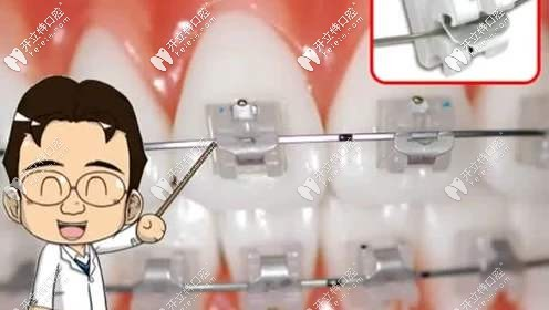 进口陶瓷自锁牙套