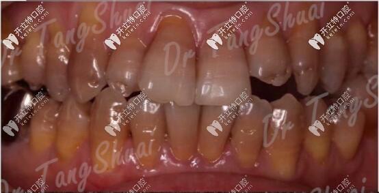 四环素牙终于做了美加瓷贴面美白,po出前后对比图感受一下