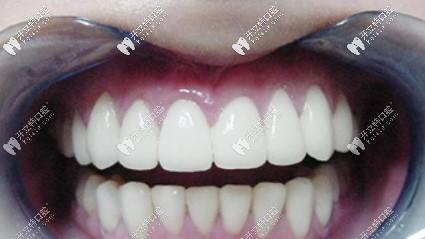 失败的牙齿贴面效果