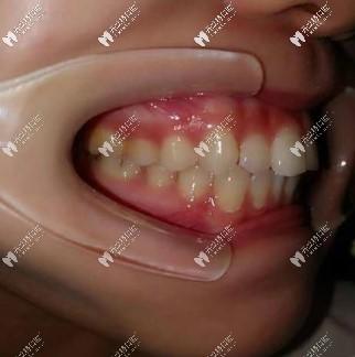 晒戴隐适美牙套内收前突牙效果图,龅牙矫正280天下巴出来了