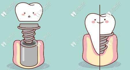 想知道温州做奥齿泰种植牙要多少钱,这份种牙价格表送给你