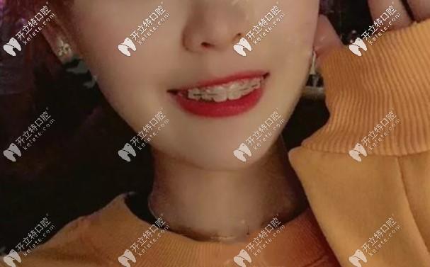 门牙龅牙戴陶瓷自锁牙套矫正380天,大家看我嘴巴还凸吗