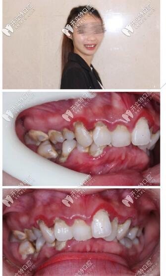 牙不齐深覆合3m自锁托槽矫正5个月,点赞海口这家高大上牙科