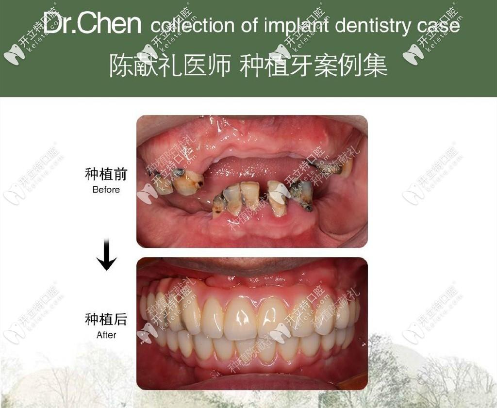 维乐口腔种植牙案例
