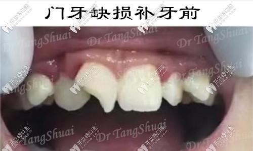 儿子门牙缺损一个角,用意大利美塑树脂补的牙还挺耐磨