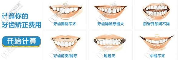 牙齿矫正的价格