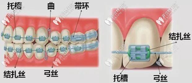 西安美奥口腔传统金属托槽牙齿矫正