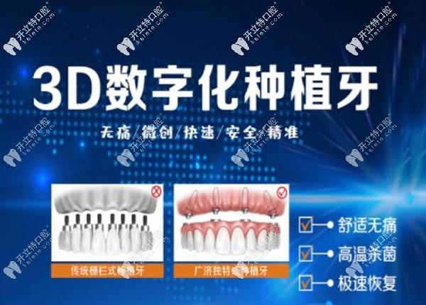 北京优贝口腔3D数字化导板种植技术