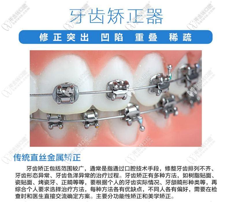 传统的牙齿矫正