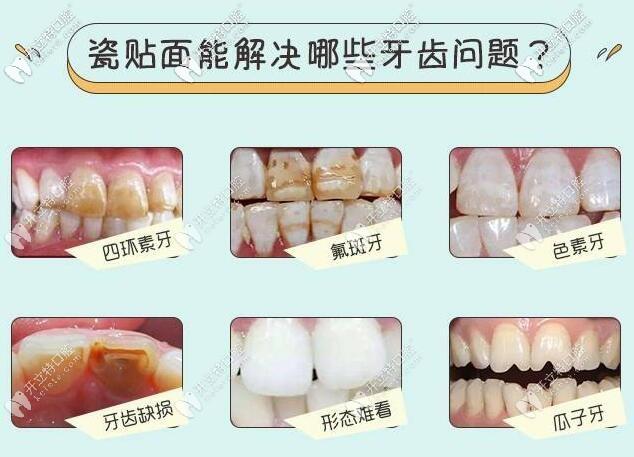 广州圣贝口腔牙齿瓷贴面