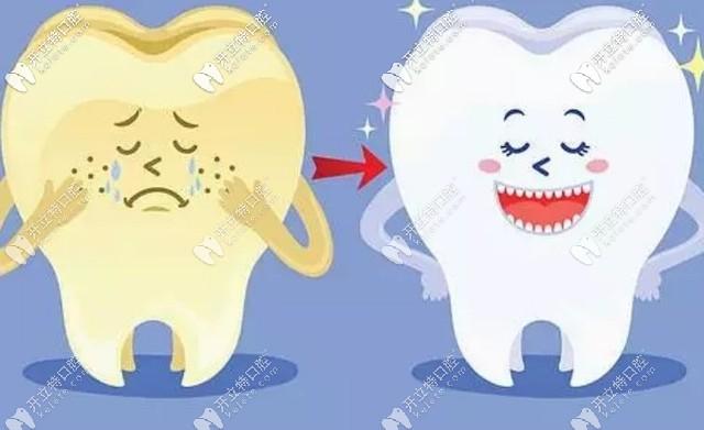 四环素牙如何美白