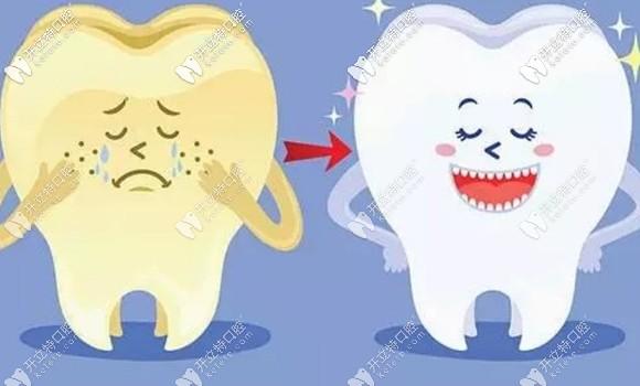 牙齿很黄怎么都刷不白?不如试试我做的这个beyond冷光美白吧