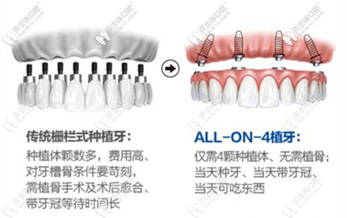 全口种植牙选传统和allon4哪个好
