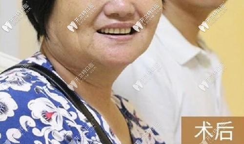 我在贵阳柏德口腔做全口种植牙后的照片