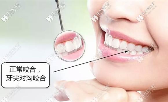 矫正后牙齿形成良好的锁合关系就不易反弹