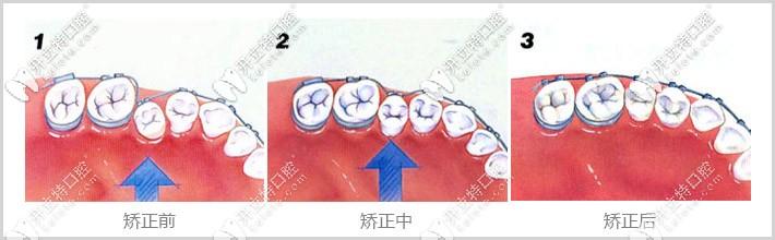 牙齿矫正过程图示