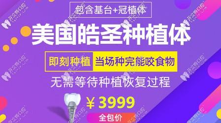 种植牙3999骗局?上海正规口腔医院hiossen种植体真的就这价!