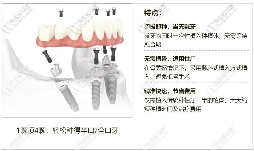 牙管家特色种植技术当日用种植牙体系特点