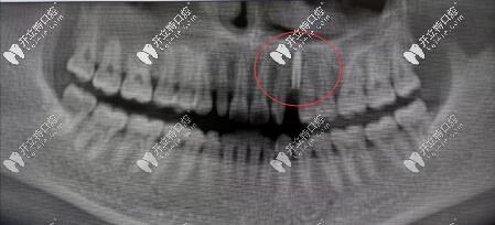 案例:法国安卓健Axiom®2.8mm型号种植体修复缺失切牙虎牙超赞