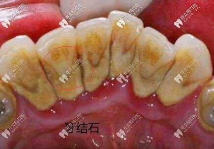 洁牙98起,国产全瓷牙888起,安康私人连锁口腔收费价格表盘点