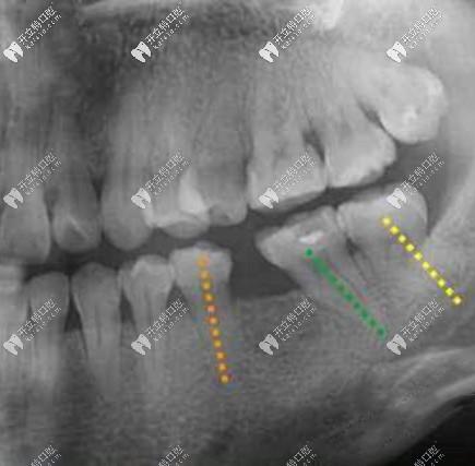 20多岁第一磨牙掉了没选价格便宜的登腾用了ankylos植体种牙