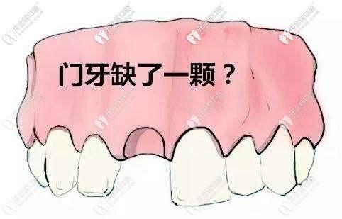 门牙缺了一颗牙