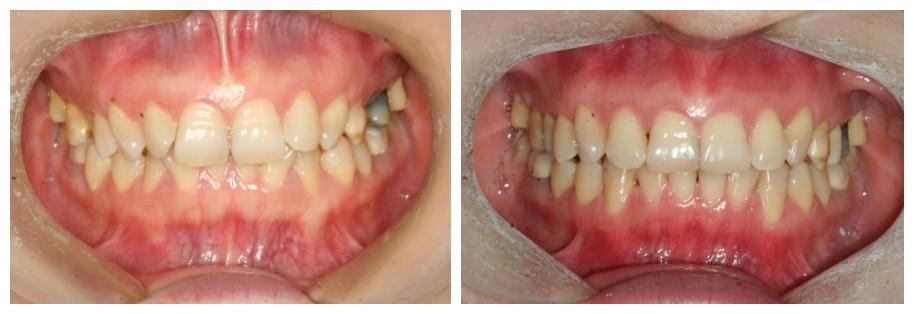 隐形牙套矫正深覆合没效果?她做时代天使不到2年告别了嘴凸