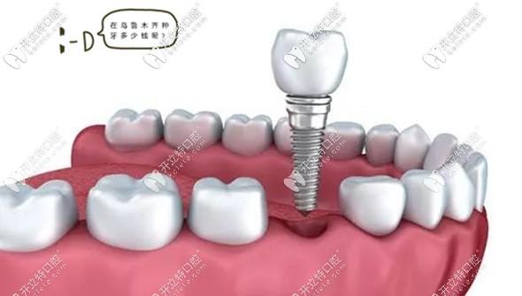 乌鲁木齐牙科资讯:做种植牙只关注价格是误区,这点更重要...