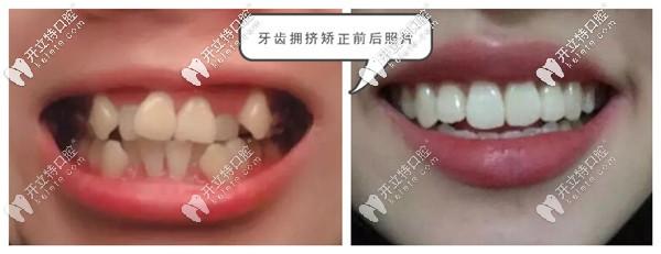石家庄牙管家口腔牙齿矫正案例