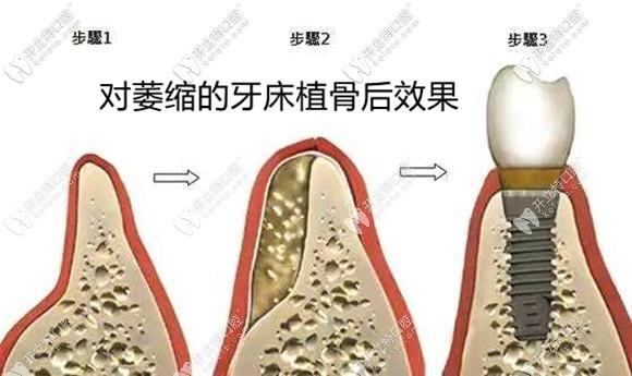 乌鲁木齐做种植牙植骨粉骨膜的价格