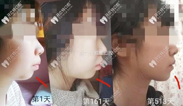 我专程从深圳来广州天河区找孙俊杰医生做舌侧隐形矫正....