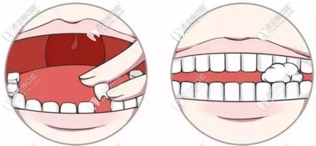 全口固定假牙的照片