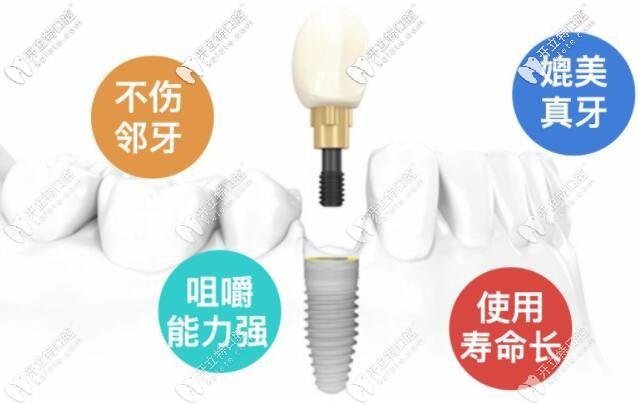 @深圳市民,南山区私立牙科做韩国登腾种植牙还不到5000块