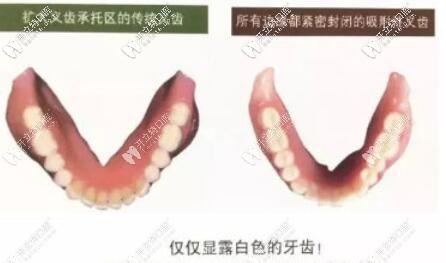 吸附性义齿与传统义齿区别