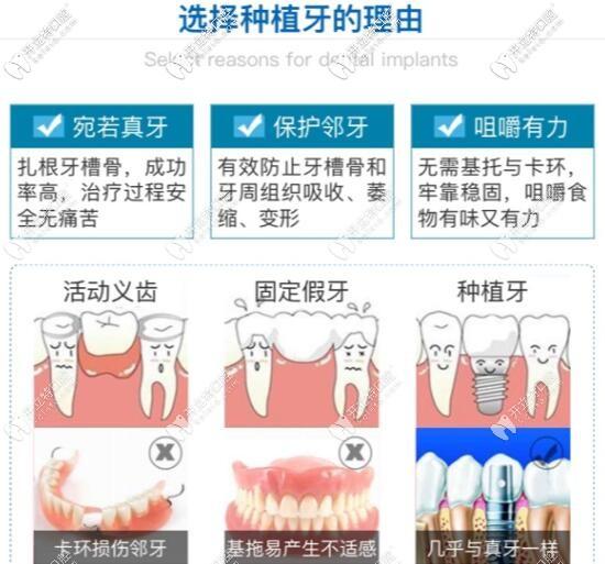 活动义齿固定假牙和种植牙哪个好