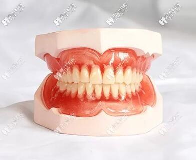 看似价格便宜其实鸡肋,有了BPS全口吸附性义齿谁还做普通的