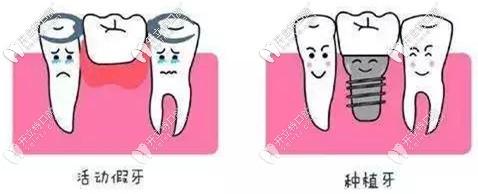 活动假牙与种植牙的区别