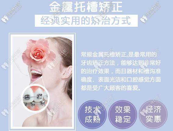 深圳微尔口腔金属托槽牙齿矫正价格