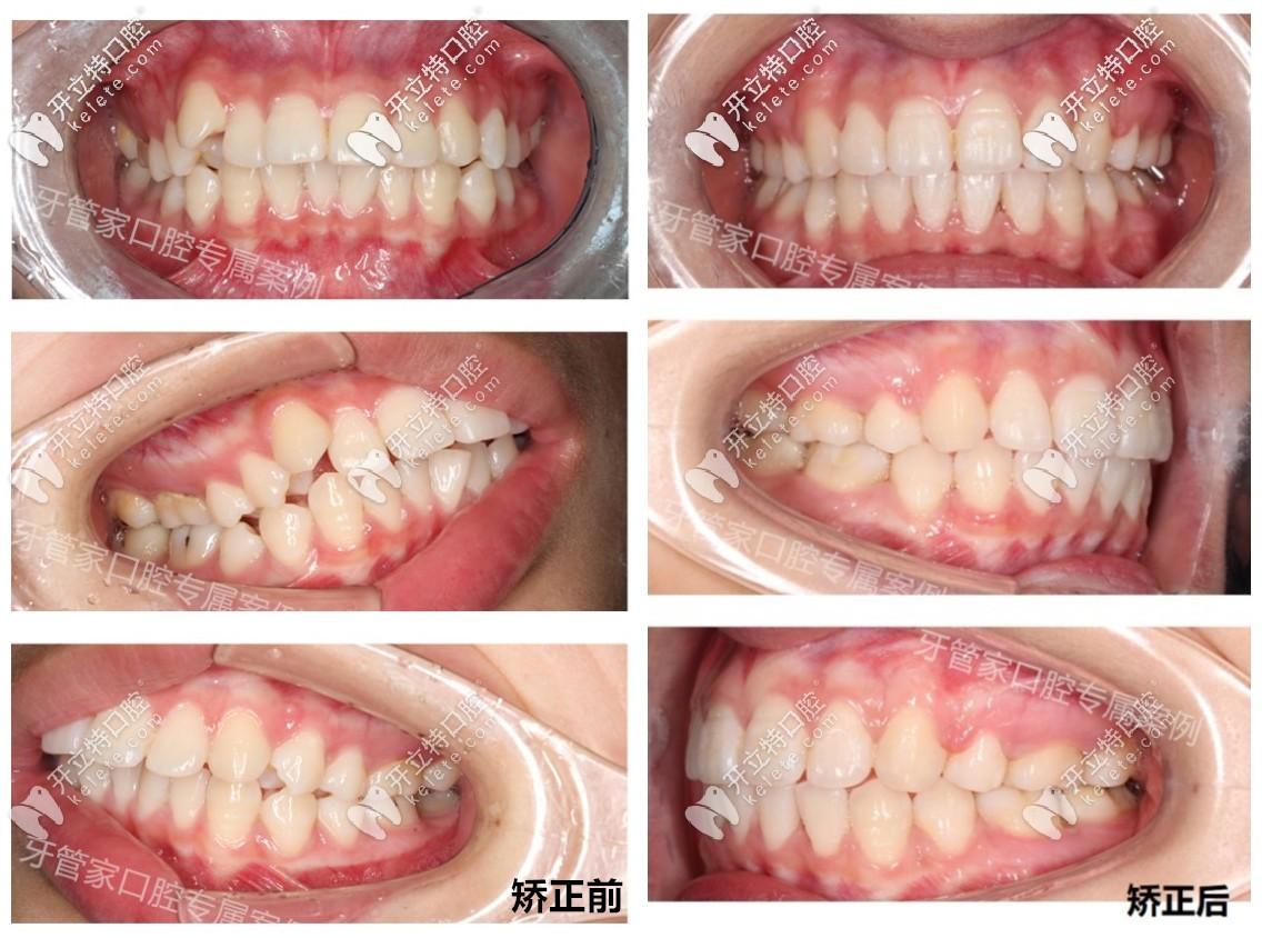 骨性龅牙戴牙套矫正前后效果对比图