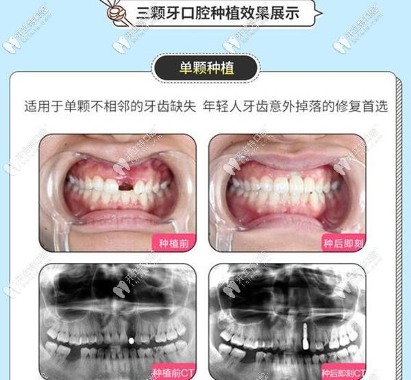 福州三颗牙口腔单颗种植牙案例