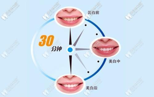 牙齿美白5.2折