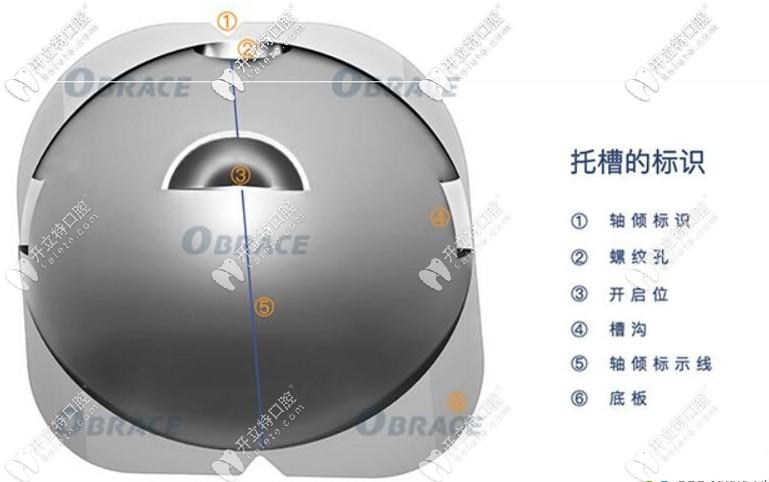 OBrace球面自锁托槽技术