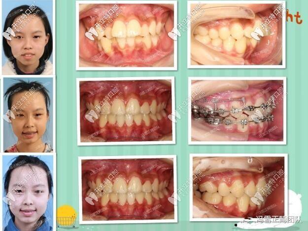 西安美奥口腔门诊部儿童牙齿矫正案例