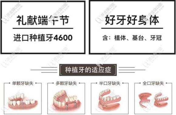 在太原做半口半固定种植牙只需27600元起,这价格值得了解哦!