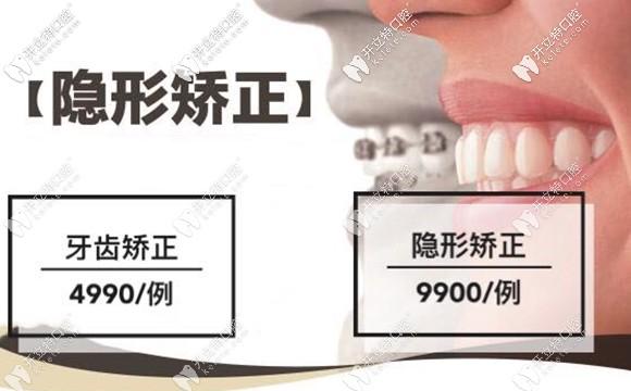 在太原医大口腔矫正牙齿也有特价