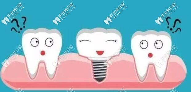 面诊西安牙科发现欧美皓圣种植牙与韩国登腾价格区别不大